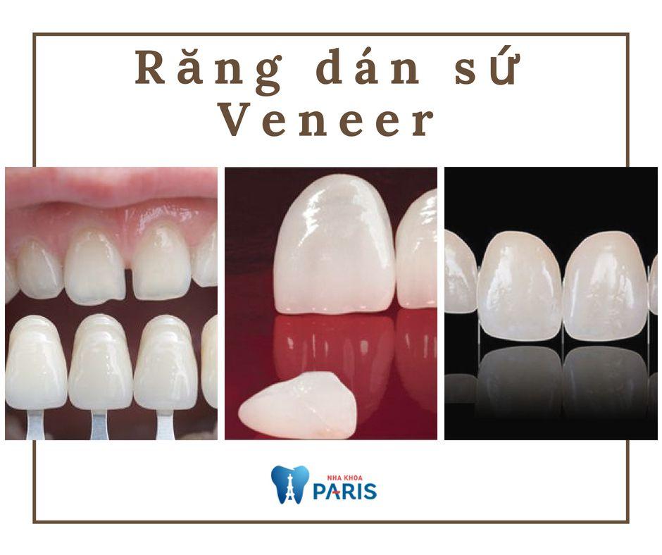 Ưu điểm vượt trội của mặt dán sứ siêu mỏng không cần mài răng 1