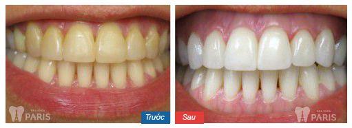 Ưu điểm vượt trội của mặt dán sứ siêu mỏng không cần mài răng 5