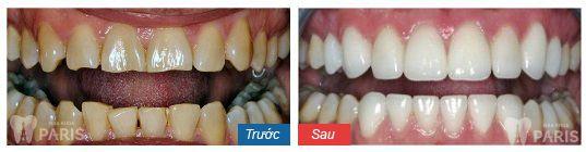 Ưu điểm vượt trội của mặt dán sứ siêu mỏng không cần mài răng 6