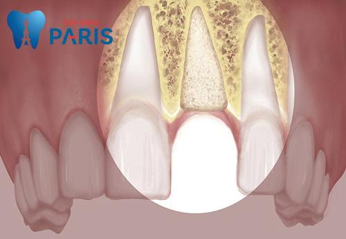 Cách làm răng lung lay chắc lại tại nhà [HIỆU QUẢ] chỉ sau 3 ngày 6