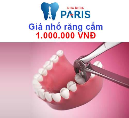 nhổ răng cấm giá bao nhiêu