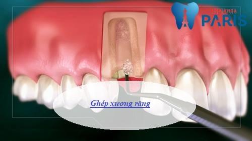 Ghép xương răng là gì, ghép xương răng có đau không, chi phí ra sao? 1