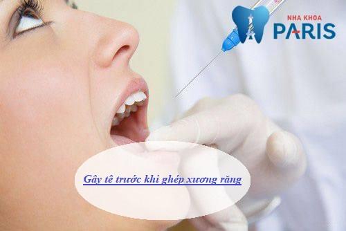 Ghép xương răng là gì, ghép xương răng có đau không, chi phí ra sao? 6
