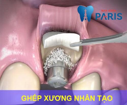 Ghép xương răng là gì, ghép xương răng có đau không, chi phí ra sao? 5