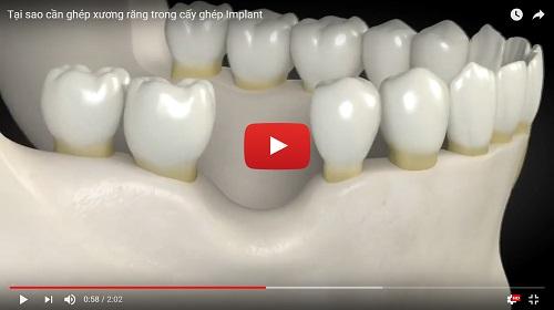 Ghép xương răng là gì, ghép xương răng có đau không, chi phí ra sao? 122