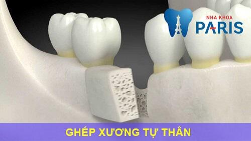 Ghép xương răng là gì, ghép xương răng có đau không, chi phí ra sao? 4