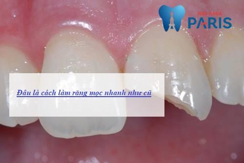 Liệu có cách làm răng mọc nhanh không? Bác sĩ nha khoa giải đáp 1