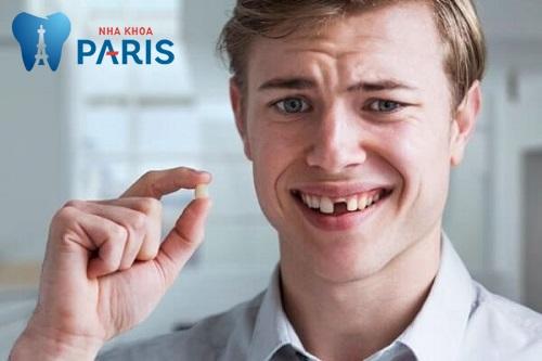 Xử lí răng bị gãy còn chân răng như thế nào tốt nhất 1