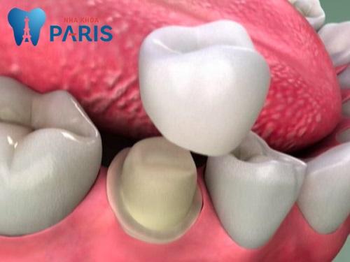 Xử lí răng bị gãy còn chân răng như thế nào tốt nhất 2