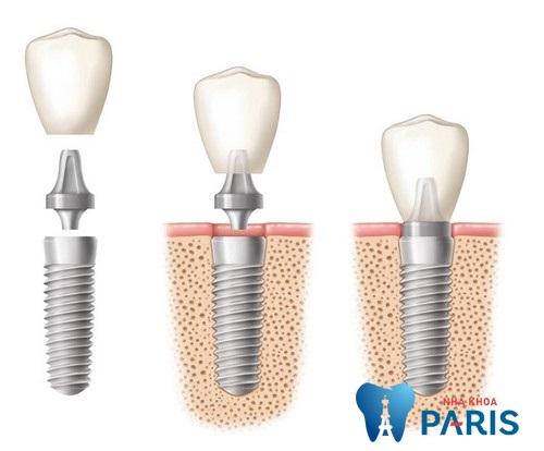 Xử lí răng bị gãy còn chân răng như thế nào tốt nhất 3