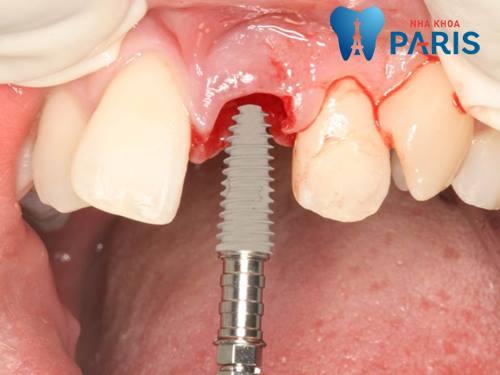 trồng răng implant34