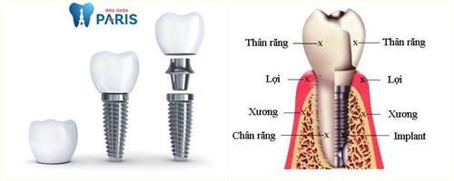 Trồng răng Implant - Giải pháp phục hồi răng mất toàn diện 12