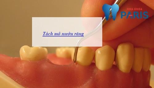 Trồng răng Implant - Giải pháp phục hồi răng mất toàn diện 113