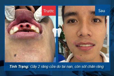 Khách hàng Nguyễn Quốc Trung khôi phục hai răng cửa bị mất bằng trụ Straumann và răng sứ Cercon.