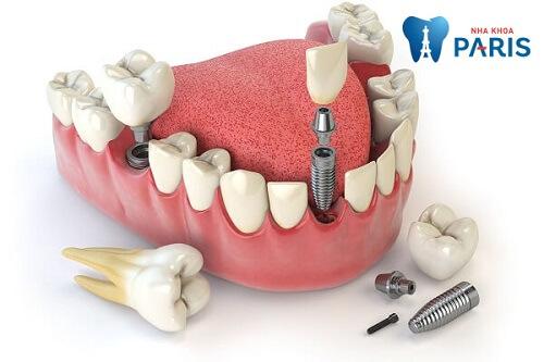 Trồng răng Implant giá bao nhiêu 2018? Làm thế nào để giảm chi phí? 3