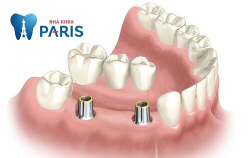 Trồng răng Implant giá bao nhiêu 2018? Làm thế nào để giảm chi phí? 4
