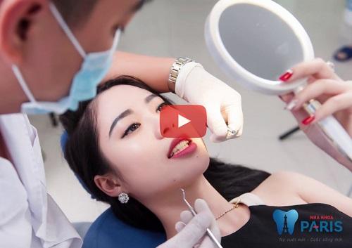 Trồng răng Implant ở đâu TỐT & nhiều Bác Sĩ Giỏi tại Hà Nội - Sài Gòn 15