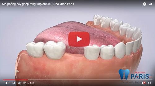 Quy trình trồng răng Implant chuẩn SAO tại Nha Khoa Paris 31