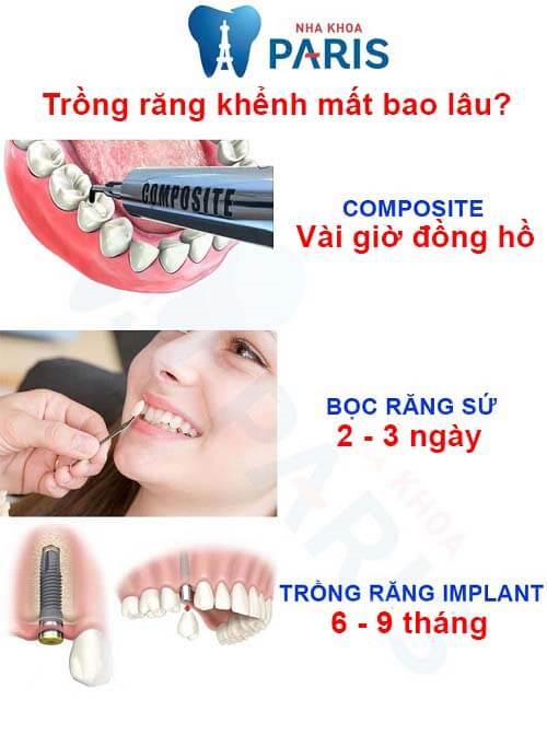 trồng răng khểnh mất bao lâu
