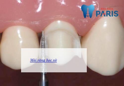 làm chụp răng sứ có đau không 4