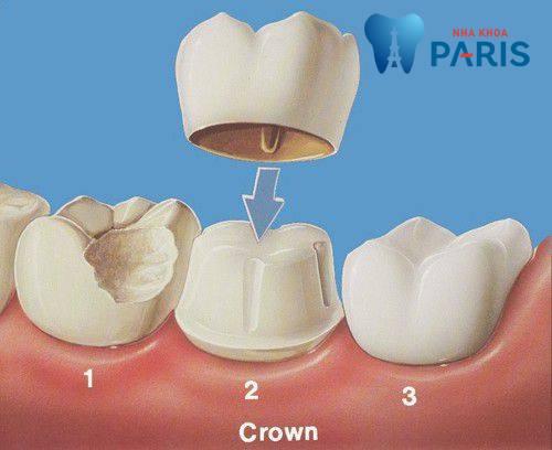 làm chụp răng sứ có đau không 1