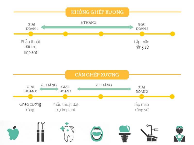 Trồng răng implant mất bao lâu? Chuyên gia Nha Khoa Paris giải đáp 2