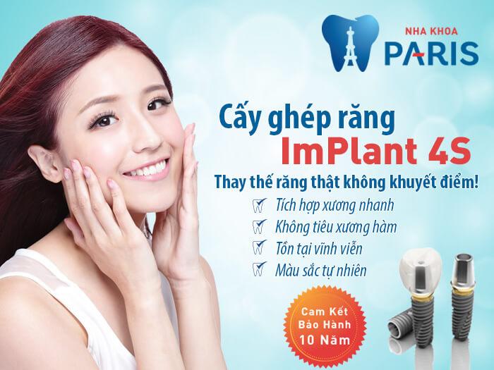 Trồng răng implant mất bao lâu? Chuyên gia Nha Khoa Paris giải đáp 1