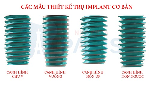 5 trụ Implant phổ biến nhất thế giới? Loại nào tốt nhất? Vì sao? 14