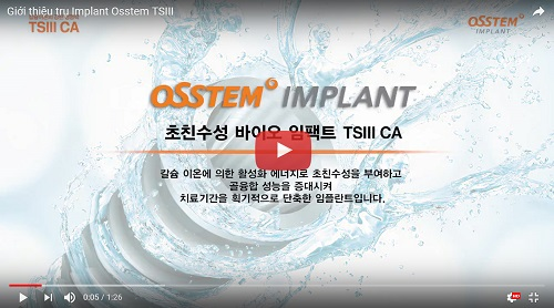 5 trụ Implant phổ biến nhất thế giới? Loại nào tốt nhất? Vì sao? 6