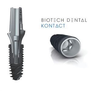 5 trụ Implant phổ biến nhất thế giới? Loại nào tốt nhất? Vì sao? 8