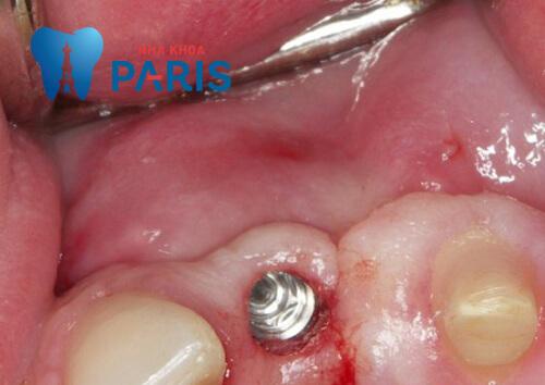 Biến chứng Implant: Nguyên nhân, triệu chứng và cách khắc phục 4