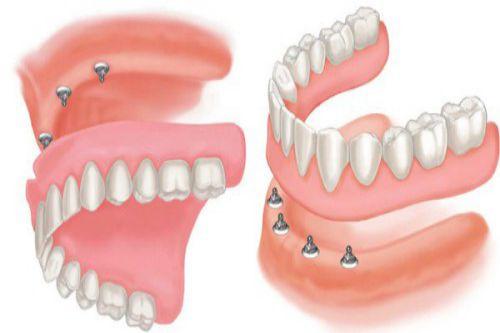 Chi phí trồng răng giả giá bao nhiêu tiền? [Bảng giá Mới nhất 2018] 3