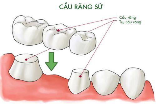 Chi phí trồng răng giả giá bao nhiêu tiền? [Bảng giá Mới nhất 2018] 4