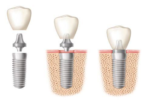 Chi phí trồng răng giả giá bao nhiêu tiền? [Bảng giá Mới nhất 2018] 5