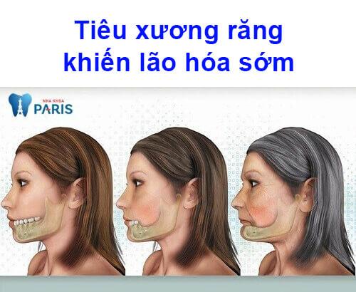 tiêu xương hàm có nguy hiểm không