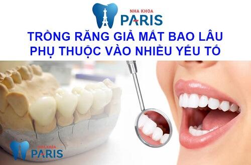 trồng răng giả bao lâu phụ thuộc vào nhiều yếu tố