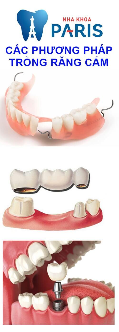răng cấm có trồng được không