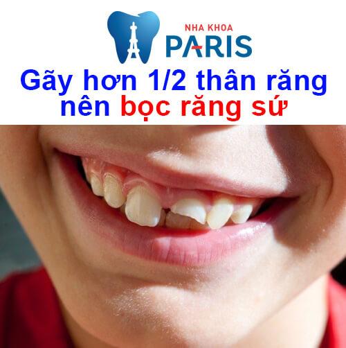 răng bị gãy một nửa