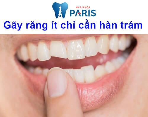 bị gãy răng