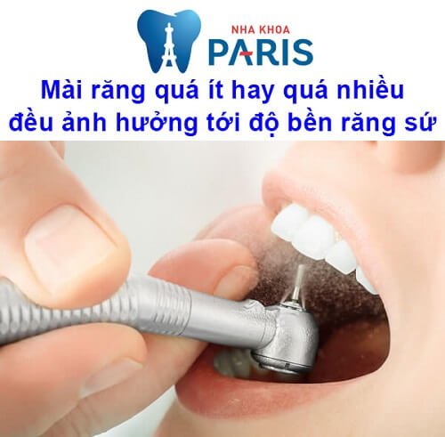 bọc răng sứ sử dụng được bao lâu