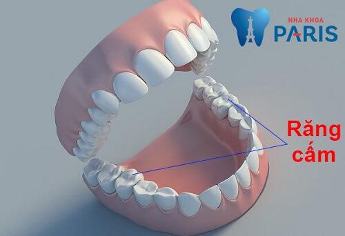 Nhổ răng cấm bị sâu