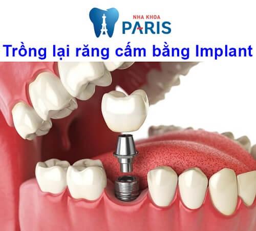 Răng cấm là răng nào