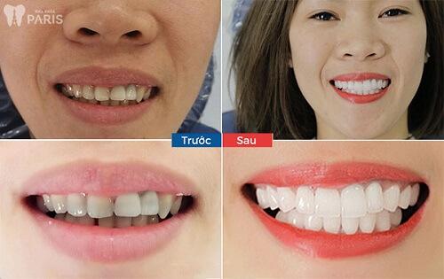 khách hàng dùng công nghệ phủ răng sứ nano shining 5s 1