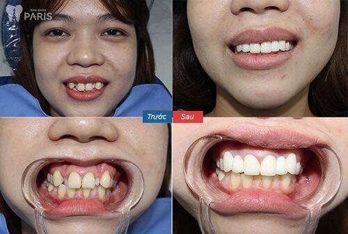 khách hàng dùng công nghệ phủ răng sứ nano shining 5s 2