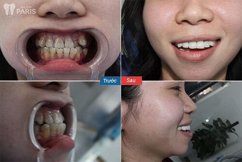 khách hàng dùng công nghệ bọc răng sứ nano shining 5s 1