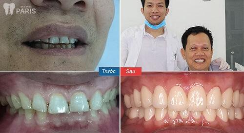 khách hàng dùng công nghệ bọc răng sứ nano shining 5s 2